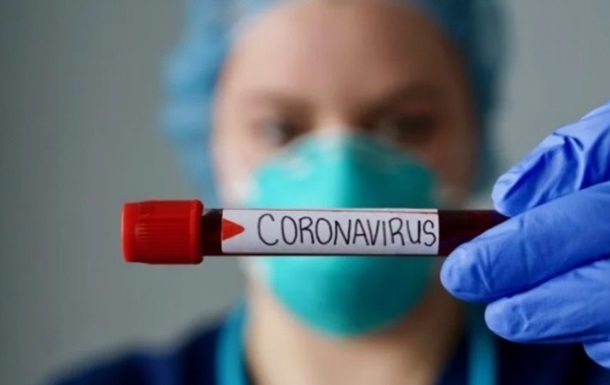 All patients with inflammation will be checked for COVID-19 - Kiev